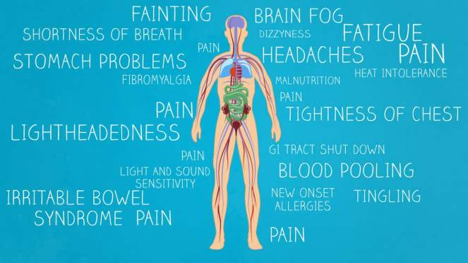 86e843e8f4 30 Things About Living with Postural Orthostatic Tachycardia ...